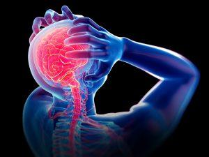 cervical headaches