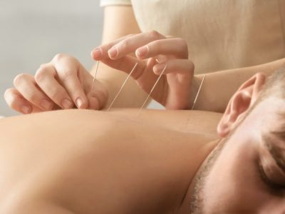 What's The Difference Between Western Acupuncture And Dry Needling?