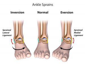 ankle sprain-thumb