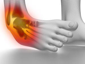 ankle sprains-thumb
