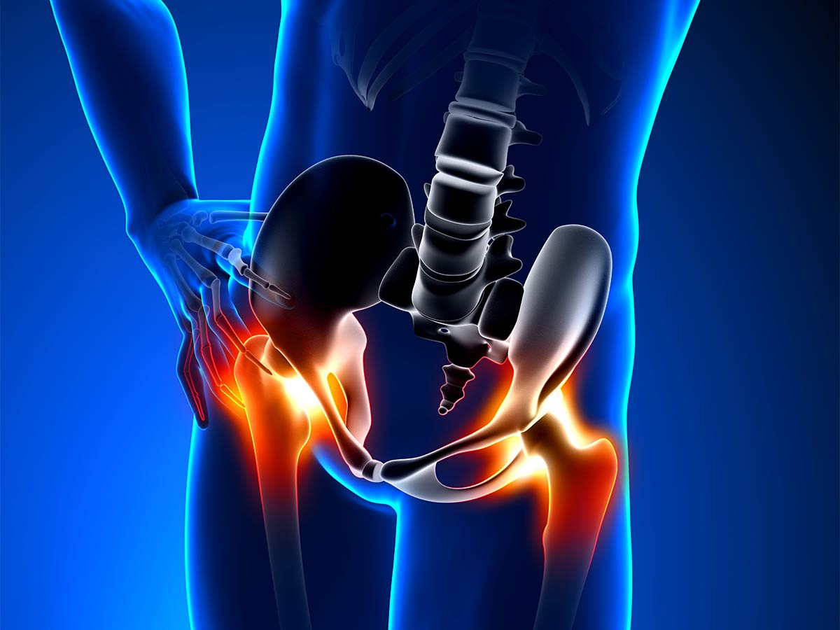 Conditions: Hip Osteoarthritis