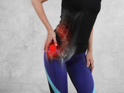 Hip (Trochanteric) Bursitis