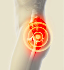 hip pain bodyviva Hip (Trochanteric) Bursitis