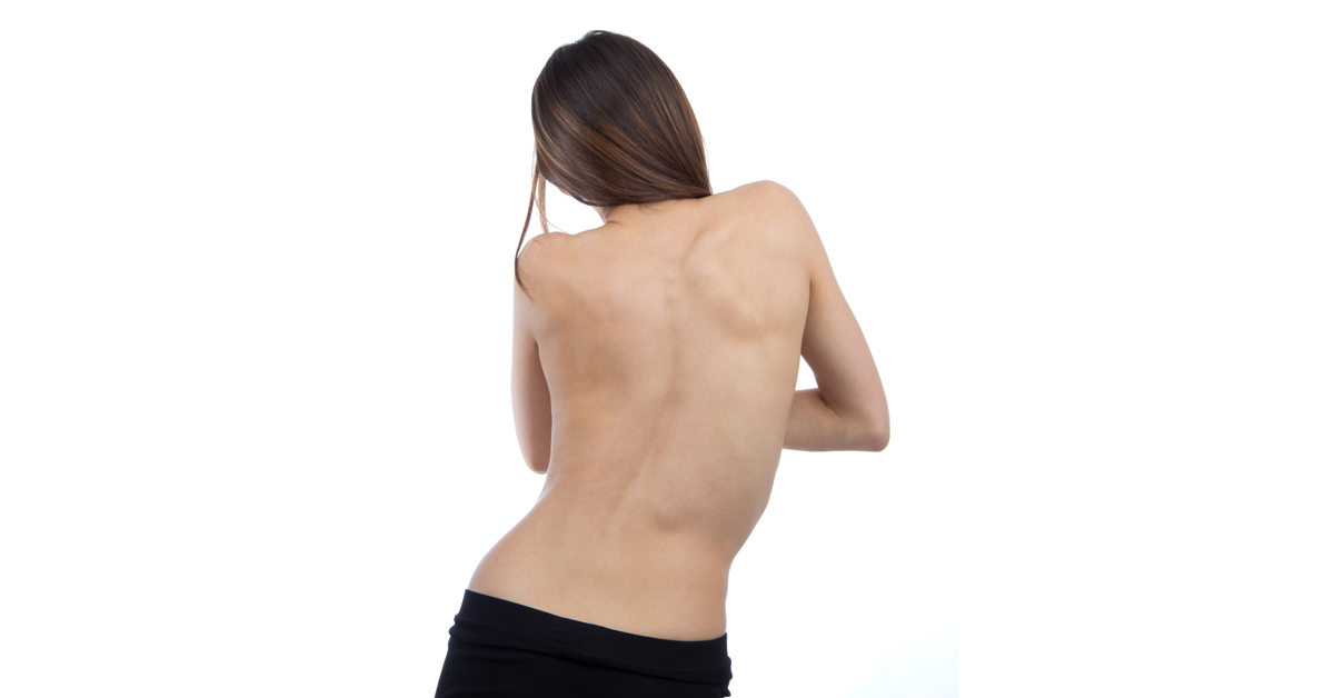 Conditions: Curvature Of The Spine - Scoliosis