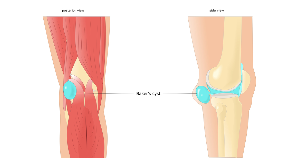 Baker's cyst (Popliteal cyst) – Physiotherapy – BodyViva