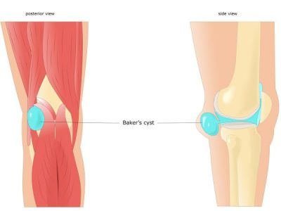 Conditions: Baker's cyst (Popliteal cyst)