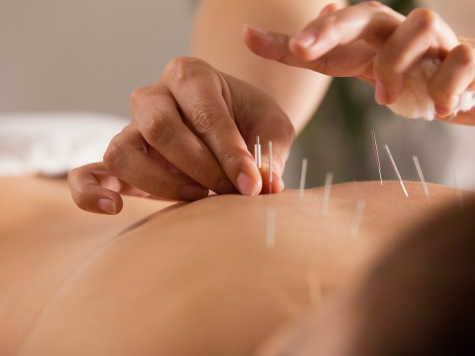 Acupuncture treatment for natural pain relief.