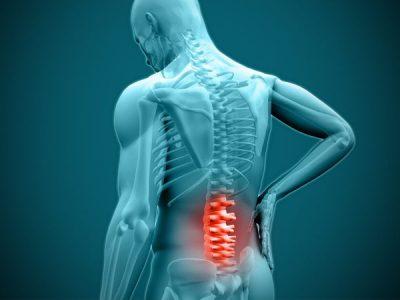 Spondylolysis (spinal stress fracture)